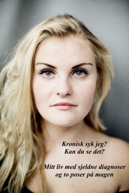 OSlo 12.10.2015 Foto: Siv Johanne Seglem /Dagbladet handikap og sex: Camilla Tjessem og kjæresten Glenn.